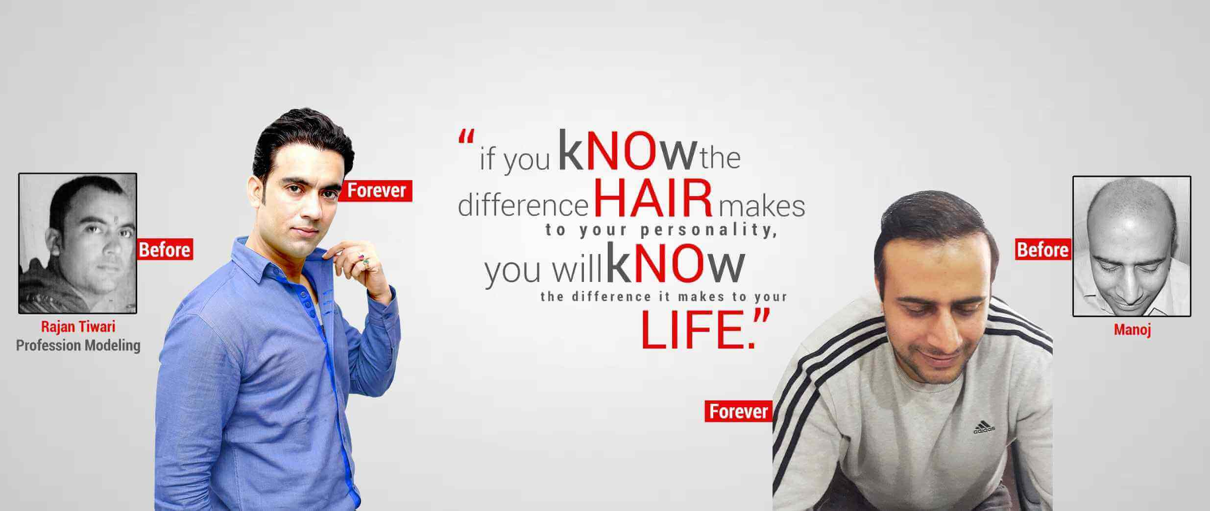 Best Hair Transplant clinic in Ranchi
